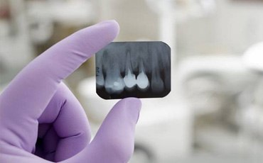 Dentist holding a small x-ray