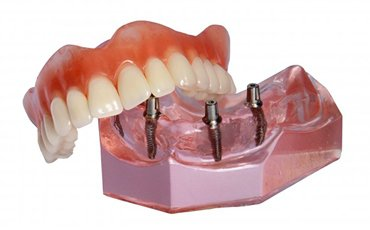 A model of an implant-retained denture