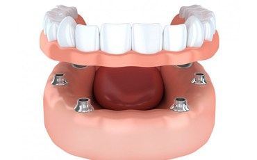 A diagram of an implant-retained denture