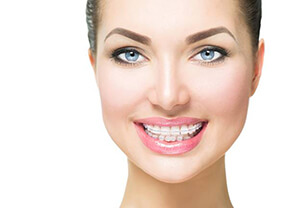 jacksonville six month smiles cosmetic orthodontics