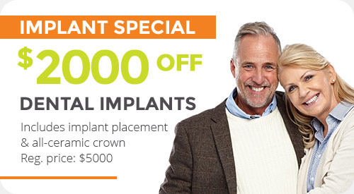Special for dental implants