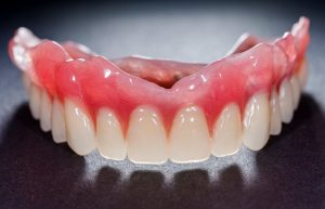 A denture for the top arch.